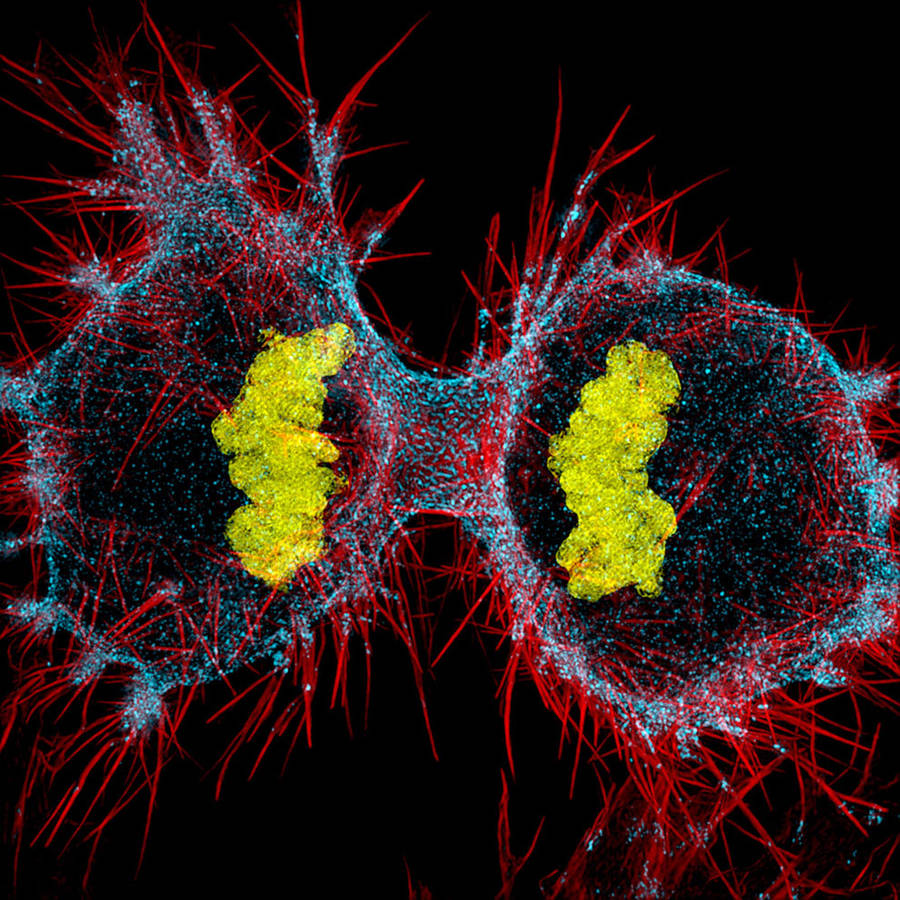 12th place / Title : Human HeLa cell undergoing cell division (cytokinesis) / Photographer : Dylan Burnette